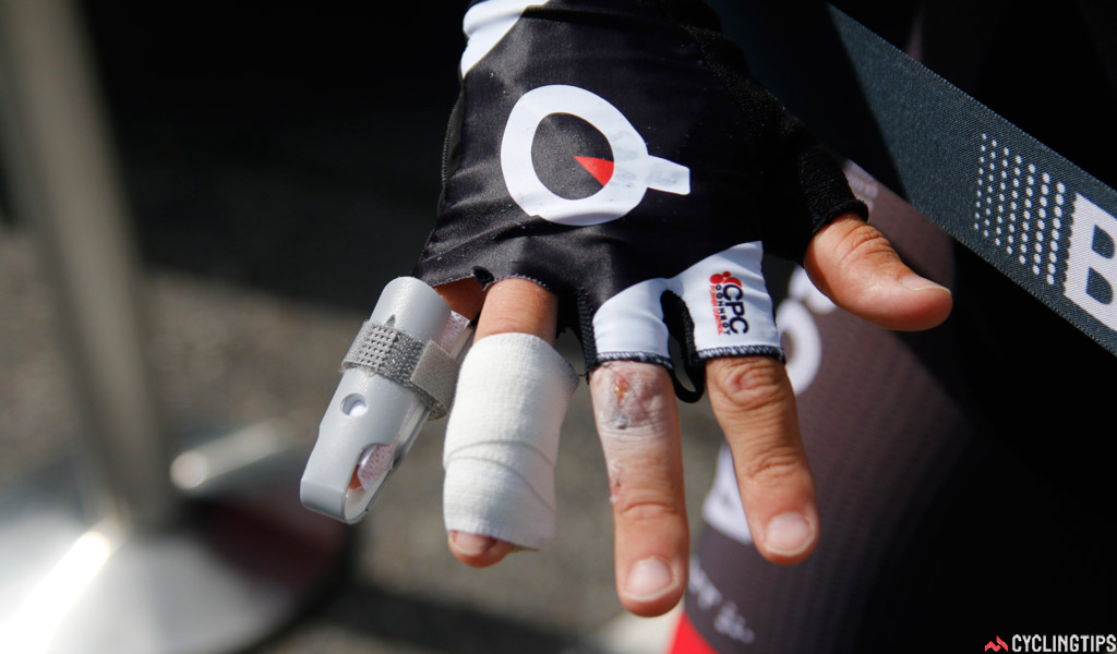 Sam Bennett's hand, ten days after his bad crash on day one of the Tour de France. He discovered on July 11 that he had a previously-undetected fracture to his small finger. This has affected his braking, sprinting and climbing in the race.