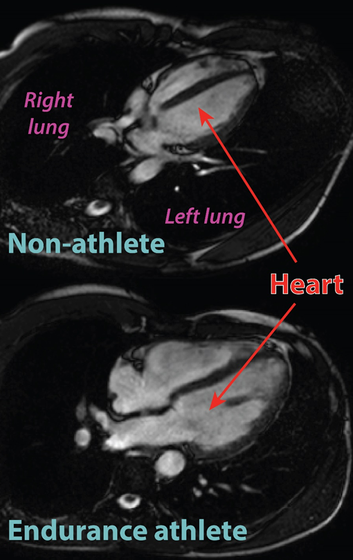 Despite similar chest sizes, the athlete's heart is approximately twice the size of the non-athlete's heart.